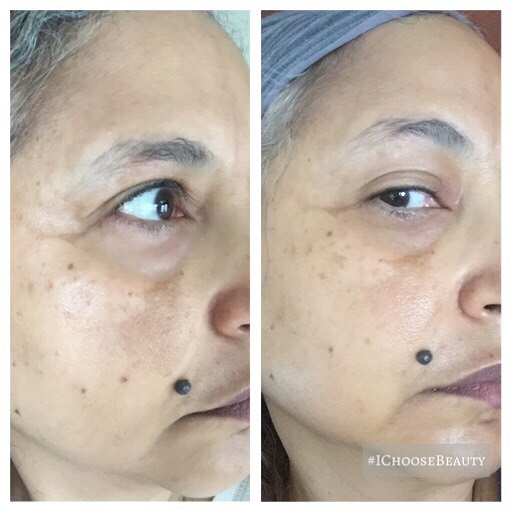 This is what happens when the stress of 2020 makes you turn to skincare for self care lol. These before and after pics were taken three months apart, after regular use of two brightness-boosting products from my favorite clean beauty brand, Beautycounter - the new All Bright C Serum and the Overnight Resurfacing Peel. Thanks 2020, for making me more consistent with my skincare.  Let me know if you need a little brightening self-care, too. ️️ #ichoosebeauty Day 2539